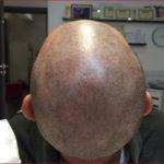 Trucco permanente a Torino: le applicazioni sul cuoio capelluto
