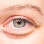 Occhiaie da stress: come eliminarle senza il bisturi