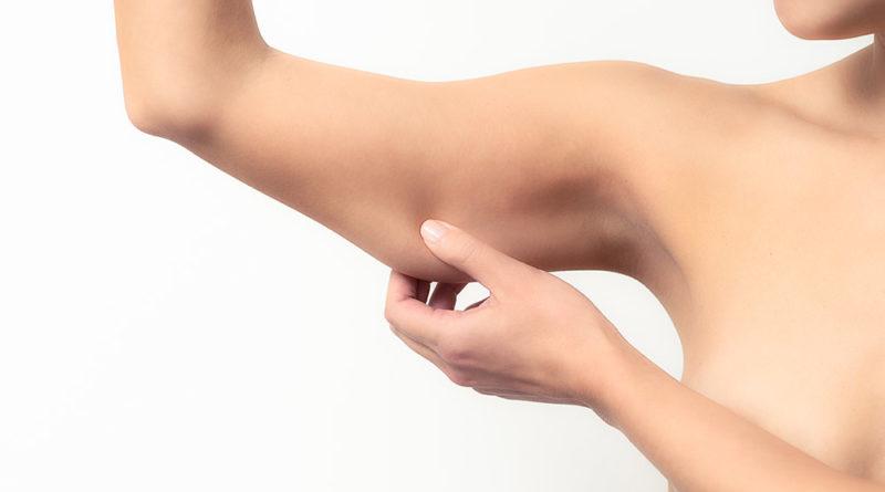 Flaccidità della pelle