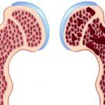Come avviene la progressiva perdita di massa ossea