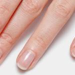 Le patologie dell'unghia: cosa sono l'onicomicosi e l'onicodistrofia