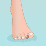 Unghia incarnita: quali sono i rimedi più efficaci