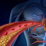 Ipercolesterolemia familiare: cos'è e come si cura