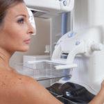 Perché fare la mammografia a 30 anni