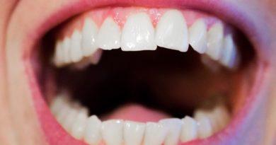 Mascherine per denti storti: ma funzionano davvero?