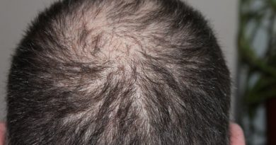 Perdita di capelli: segni, cause e prevenzioni