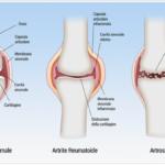Artrite reumatoide e osteoartrosi: prevenzione e cura