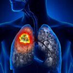 Farmaco a bersaglio molecolare efficace contro il tumore al polmone