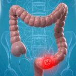 La prevenzione dei tumori al colon deve iniziare a 45 anni