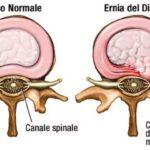 La chiropratica come cura dell'ernia del disco