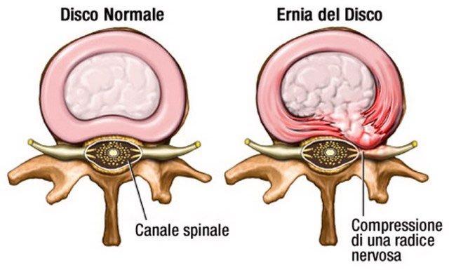 ernia del disco - ph da centrochiropraticomonzese
